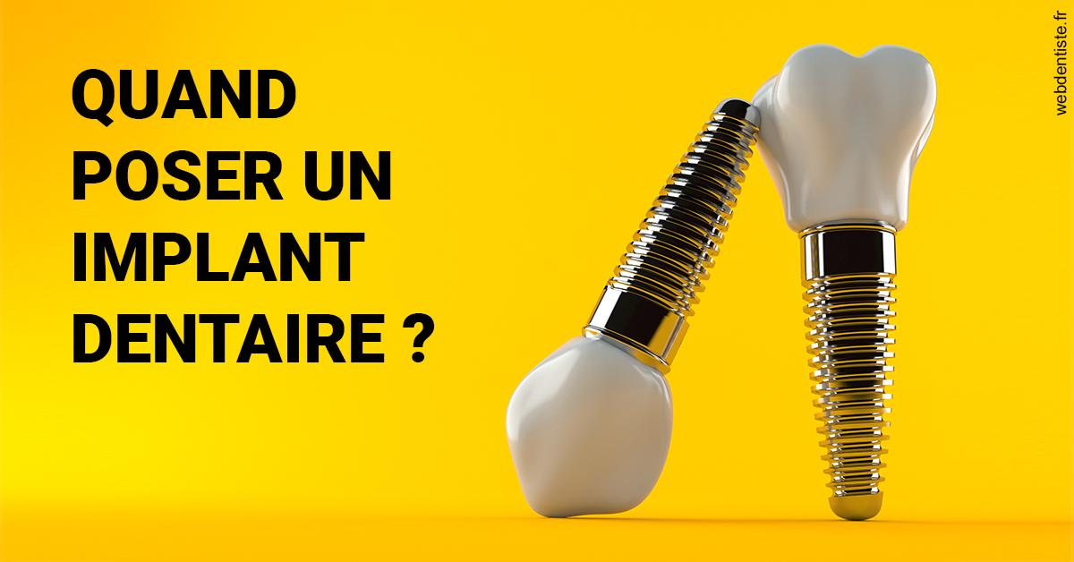 https://dr-haroun-antoine.chirurgiens-dentistes.fr/Les implants 2