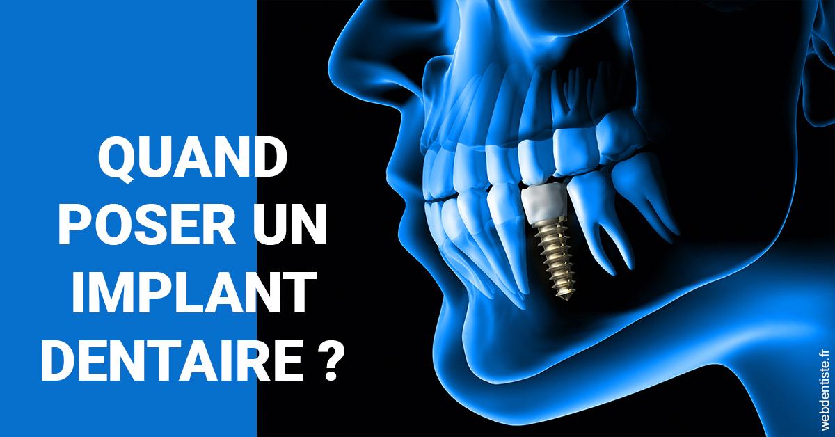 https://dr-haroun-antoine.chirurgiens-dentistes.fr/Les implants 1
